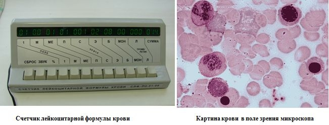 как выглядят лейкоциты фото